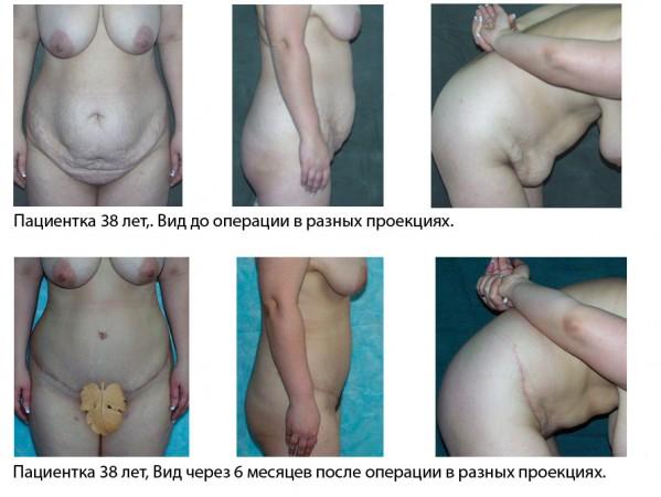 muzhik-s-ogromnoy-golovkoy-foto